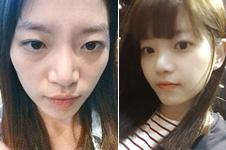 韩国ID和赫尔希鼻综合案例分析,哪家效果更自然?