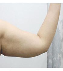 韩国美line整形医院手臂吸脂对比图_术前