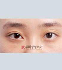 如妃整形外科双眼皮手术对比图