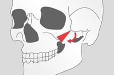 3D颧骨旋转术会导致面部下垂吗?