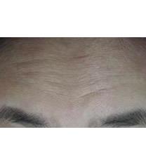 美line整形医院注射玻尿酸去抬头纹对比图