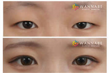 眼睛一大一小如何整形?眼睛变大整形多少钱?