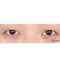 韩国美line整形医院埋线双眼皮对比图