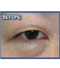 韩国美line整形医院上眼睑矫正手术对比图