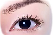 美line医院:非切开法后眼角整形手术 美的更自然
