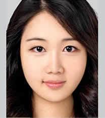 北京伊美尔医疗美容眼部综合整形案例对比图