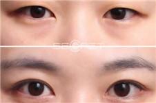 开眼角后疤痕增生?看看什么眼睛适合做整形