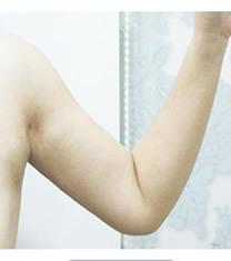 韩国美line整形医院手臂吸脂对比图_术后