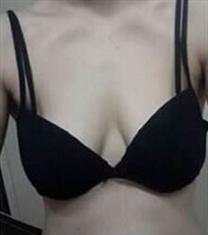 Touch U 整形外科隆胸案例