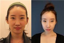 微整3d小脸术 非手术瘦脸受上班族青睐