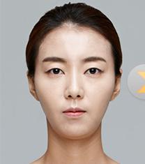 韩国dr.朵颧骨缩小整形对比图