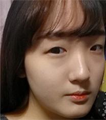 眼鼻轮廓整形对比案例