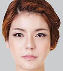 北京伊美尔医疗美容医院鼻综合整形对比图