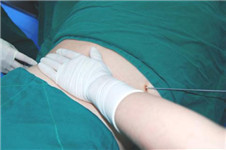 韩国美护支招:吸脂术后恢复过程护理指南