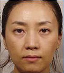 韩国乐世里LUXELL整形医院面部年轻化对比图
