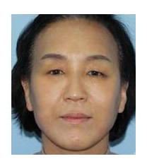 韩国乐世里LUXELL整形医院抗衰老案例对比图