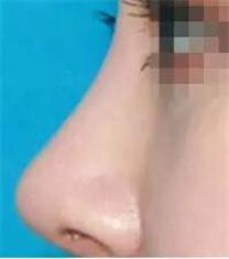 上海美莱隆鼻整形