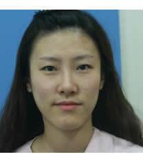 韩国OK整形医院面部脂肪填充对比图