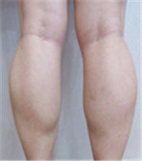 肉毒素瘦小腿