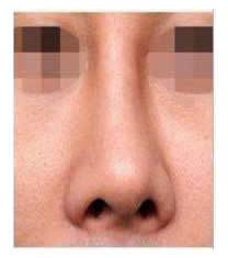 韩国春光整形外科歪鼻矫正对比图_术后