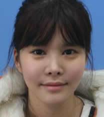 韩国OK整形医院面部自体脂肪填充对比图