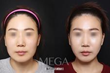 女神和美佳做下颌角对比,手术细节大不同!