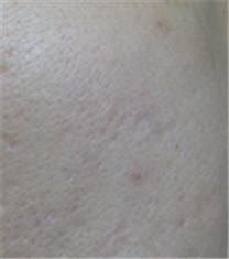 痘疤对比案例