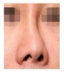 韩国春光整形外科歪鼻矫正对比图_术前