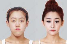 韩国id和GNG医院双鄂手术区别有哪些?