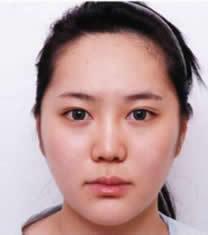 韩国POSE整形外科下颌角整形对比图