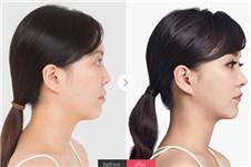 3D隆鼻多少钱?手术后多久完全自然?