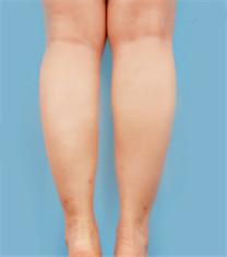 瘦腿针对比案例