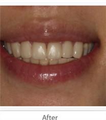 种植牙案例
