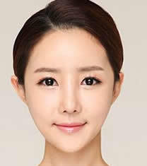 韩国CLAIR整形外科歪鼻矫正对比图