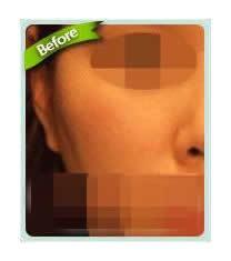 韩国Bone整形外科颧骨缩小对比图