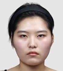 韩国POSE整形外科颧骨缩小对比图