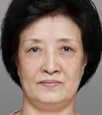 韩国POSE整形外科童颜整形对比图