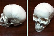 人造骨假体垫额头前后对比 效果秒杀脂肪填充