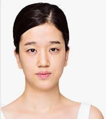 韩国CLAIR整形外科眼鼻整形对比图_术前