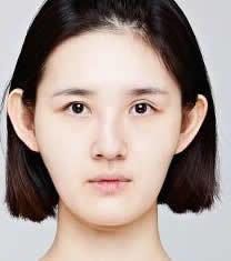 韩国CLAIR整形外科歪鼻矫正对比图_术前