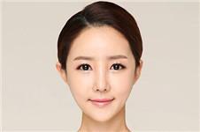 梦幻芭比眼睛整形:双眼皮手术+开眼角