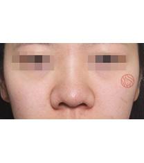 硅胶隆鼻对比案例_术前
