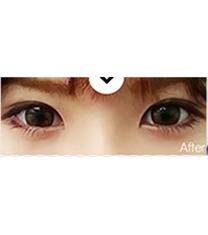 双眼皮手术案例_术后