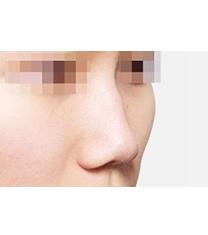 驼峰鼻矫正对比案例_术前