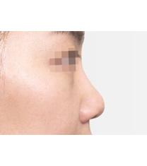 短鼻矫正对比案例_术前
