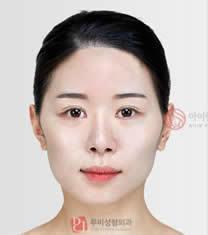 爱琳整形医院左右脸不对称矫正对比图