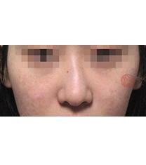 歪鼻矫正对比案例