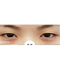 双眼皮手术案例_术前