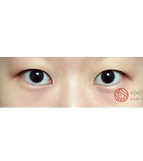 爱琳整形外科开外眼角手术对比图_术前