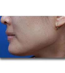 下颌角整形对比案例_术前